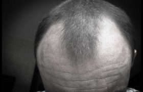 8 Easy Home Remedies To Prevent Hair loss & Hair Thinning